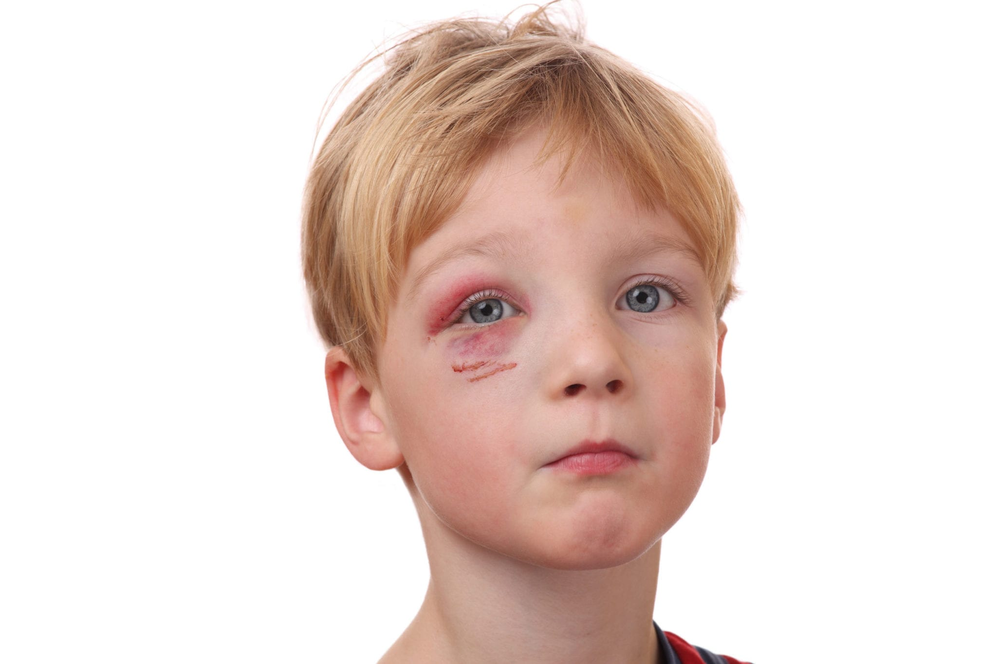 Injury to a Child Doesn't Always Indicate Abuse in Texas